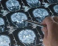 alzheimer_radyoloji_tedavi