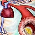 diyabet-koroner-kalsiyum