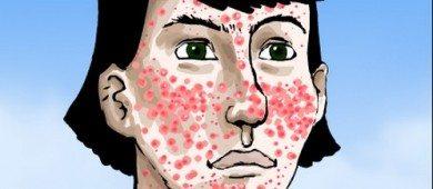 akne-vulgaris-sivilce