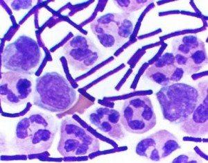 anthrax-sarbon-bakteri