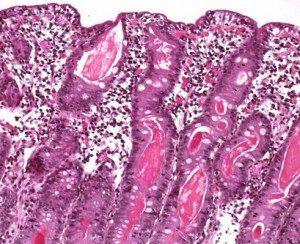 cystic-fibrosis-peritonit