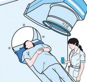 radiotherapy-radyoterapi