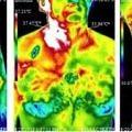 radyasyon-etkisi