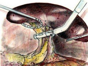 splenektomi-dalak
