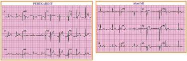 EKG taşikardi