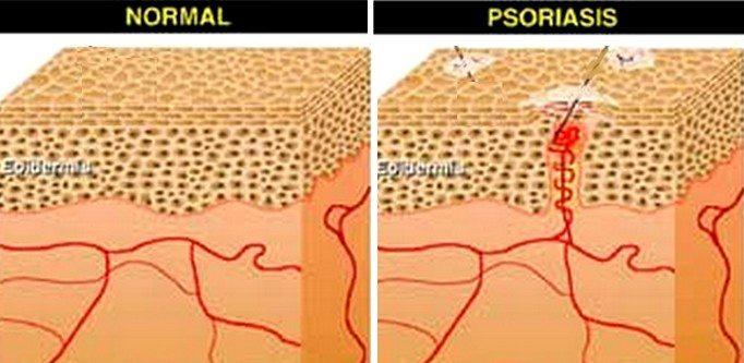 sedef-psoriasis-sekil