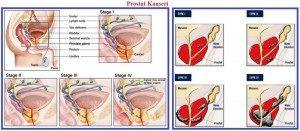 prostat-kanseri2
