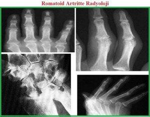 romatoid-artrit-RA3