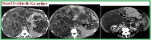 bobrek-kalitsal-kistik-hastalik1