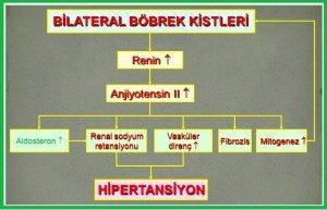bobrek-kalitsal-kistik-hastalik2