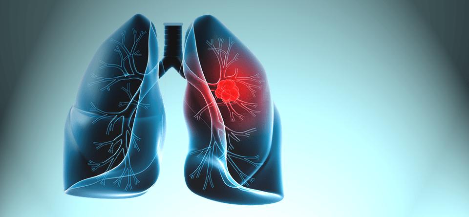 akciğer kanseri ile ilgili görsel sonucu