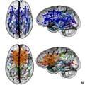 beyin-kadin-graf