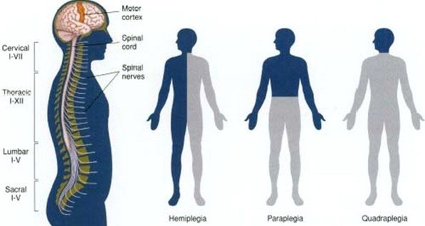 hemipleji-hemiplegia