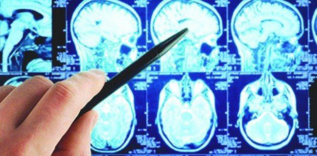 beyin-kanser-film