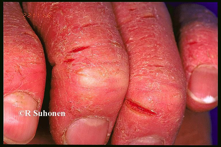 Resim çocuklarda allerjik egzama nedir 14