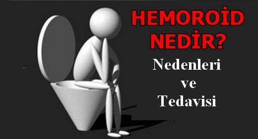 hemoroid-nedir--nedenleri-tedavisi