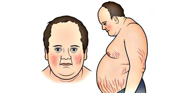 Yumurtalık disfonksiyonu: nedir Nedenleri, Belirtileri ve Tedavi Yöntemleri