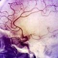 inme-beyin-kafatası