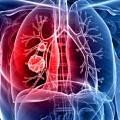 akciger-kanseri-cancer