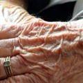 alzheimers-demans-yaşlı