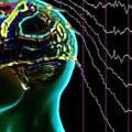 beyin-hucreleri-ruya-evresi
