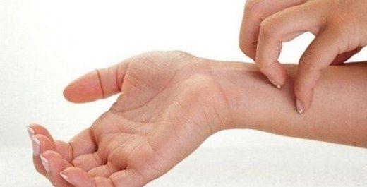 egzama-tedavisi-krem-kasinti
