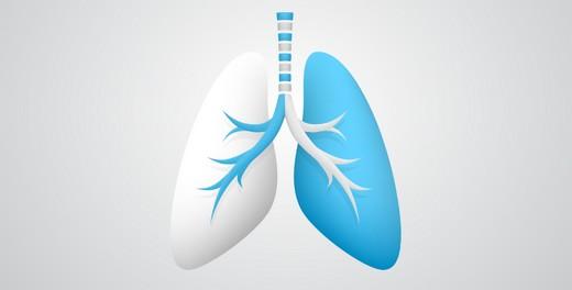 Idiopatik Pulmoner Fibrozis (IPF) Kanser kadar ciddi bir hastalık
