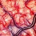 damar-beyin