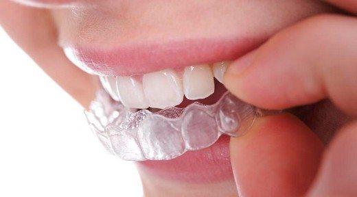 diş gıcırdatma aparatı