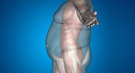 obez-şişman