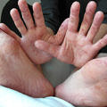 El-ayak-agiz-hastaligi-4