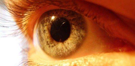 gözde-sarı-nokta-hastakığı