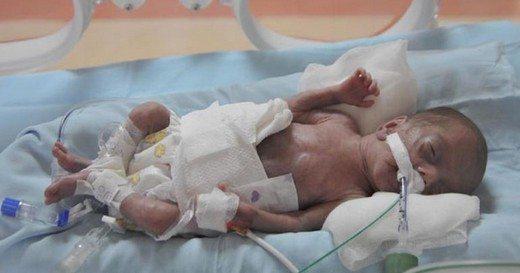 prematüre-bebek