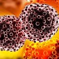 tumor-kanser-hucre