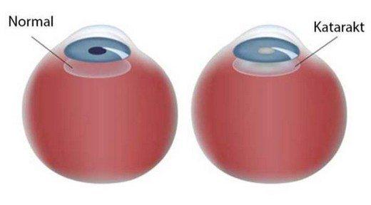 sezer-optik-katarakt-nedir