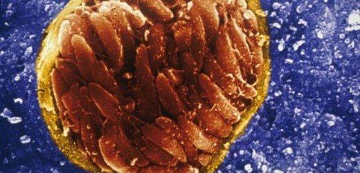 toksoplazma-gondii