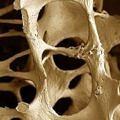 osteoporozlu-kemik