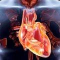 Aort yırtığı belirtileri- kalp