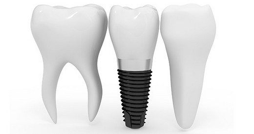 dis-koku-implant