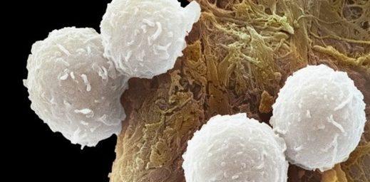 lösemi-kanser-hucresi