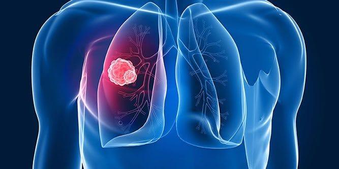 akciger-kanser-tumor