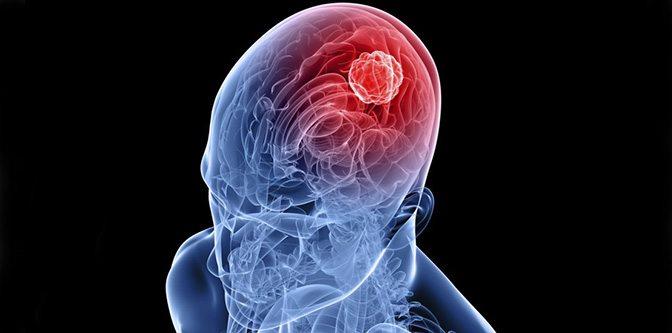 beyin-kafa-tumor