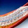 kalp-stent1