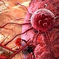 kanser-hucre-damar-6