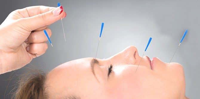 Akupunkturun diyete etkisi