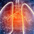 akciger-idiopatik-pulmoner-fibrozis