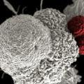 T-cells-losemi-hucre
