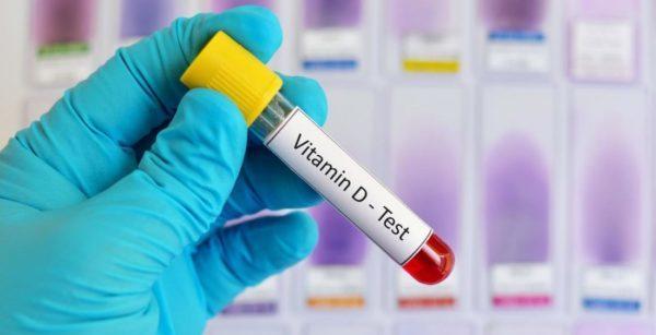 D vitamini testi