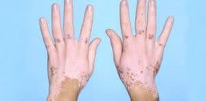 Vitiligo (ala hastalığı)
