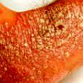 sedef-psoriasis-cilt-3